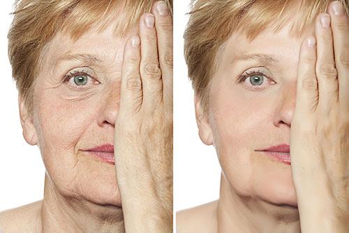 今こそ「しわ・たるみ」のない肌へ!肌メカニズム改善法とは