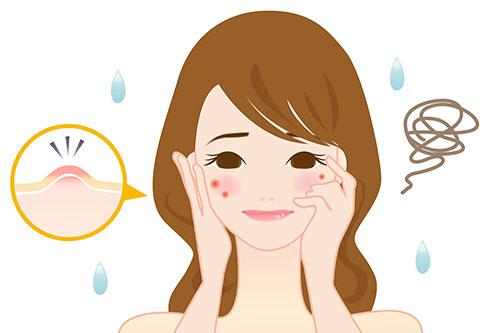ひどい・治らない…重症ニキビには美容皮膚科