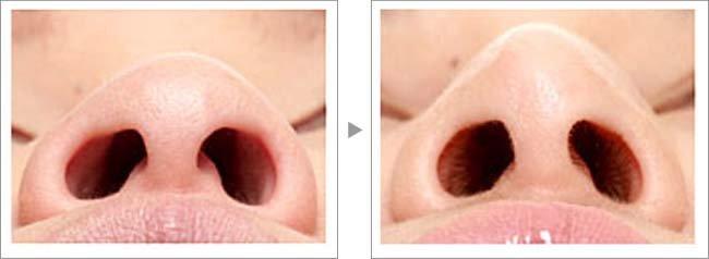 【お悩み別!鼻の整形治療】鼻先修正で鼻の歪みを解消症例写真