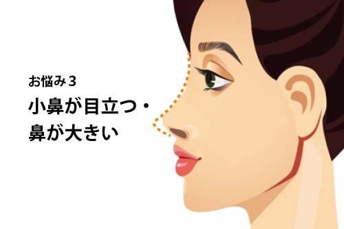 【お悩み別!鼻の整形治療】よくあるお悩み3:小鼻が目立つ・鼻が大きい