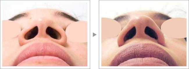 【お悩み別!鼻の整形治療】小鼻縮小で小鼻・鼻の穴をスッキリ小さく症例写真