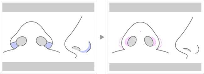【お悩み別!鼻の整形治療】小鼻施術方法