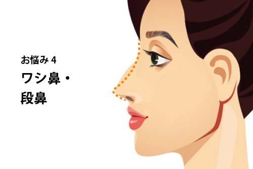 【お悩み別!鼻の整形治療】よくあるお悩み4:ワシ鼻・段鼻