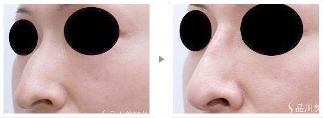 【お悩み別!鼻の整形治療】鼻梁を整えるワシ鼻修正術