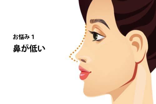 【お悩み別!鼻の整形治療】よくあるお悩み1:鼻が低い