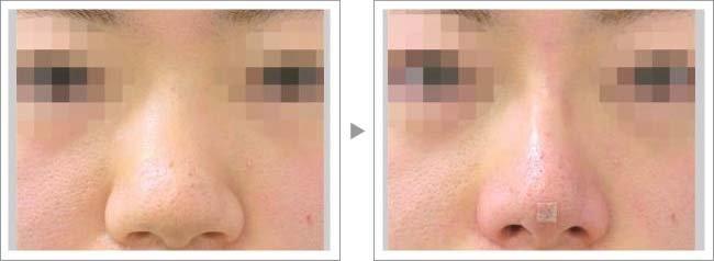【お悩み別!鼻の整形治療】プチ隆鼻術で鼻筋にハイライトが!症例写真