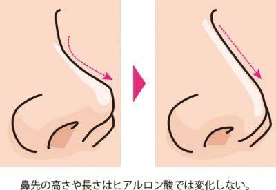 【お悩み別!鼻の整形治療】鼻先の高さや長さはヒアルロン酸では変化しない