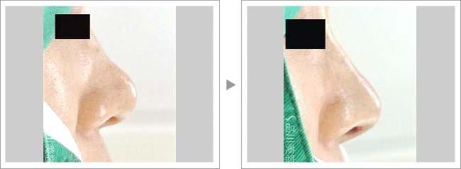 【お悩み別!鼻の整形治療】スーパーナチュラルプロテーゼ隆鼻術で鼻筋がまっすぐに症例写真