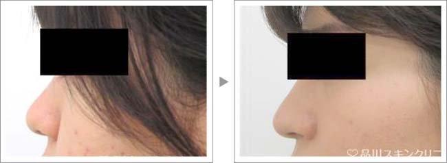【お悩み別!鼻の整形治療】フレックス・ノーズ®で鼻尖の形がスッキリ症例写真