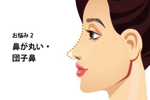 【お悩み別!鼻の整形治療】よくあるお悩み2:鼻が丸い・団子鼻