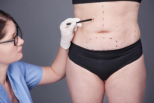 脂肪吸引の効果は?特徴とメリットを解説