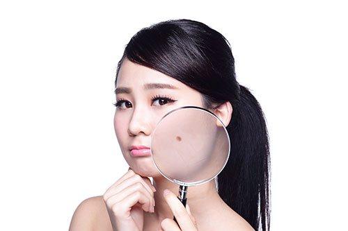 「顔のほくろを取りたい!」美容外科での施術の流れ