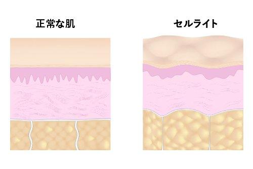 セルライトの形成過程1