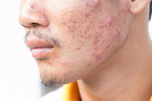 男性にも人気のメニューはスキンケア・ニキビ治療