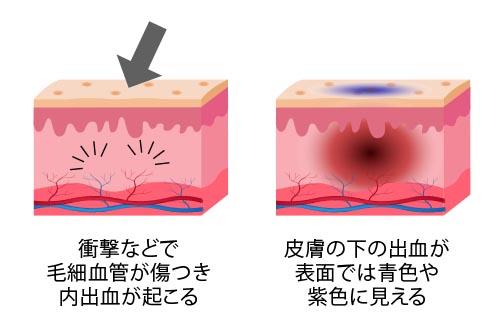 内出血による青あざ(うちみ)ができる仕組み