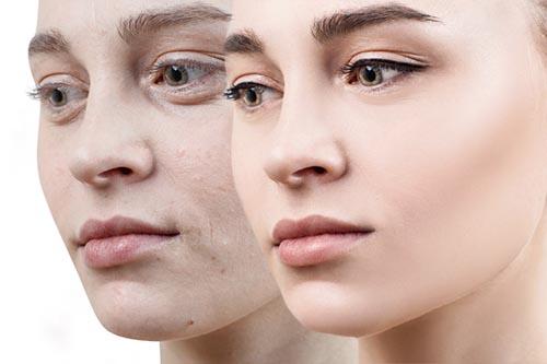 乾燥肌って老けて見える?原因と対策を解説