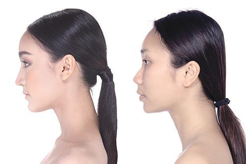 【ハーフ顔を目指すなら「鼻」に注目!】鼻の形を整える様々な施術