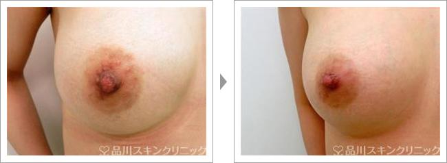 乳頭縮小術の症例