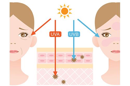 紫外線による皮膚への影響