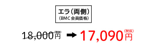 エラ(両側) 18,000円(税抜)→ 17,090円(税抜)