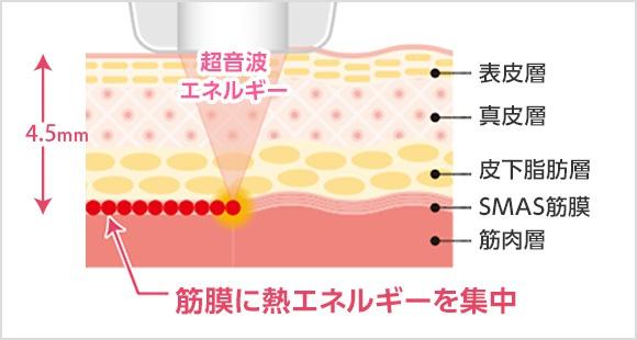 表皮、真皮、皮下組織、SAMS筋層、熱エネルギー
