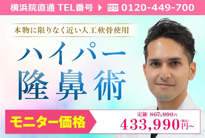 横浜院城石医師によるハイパー隆鼻術 ¥867.990→¥433.990