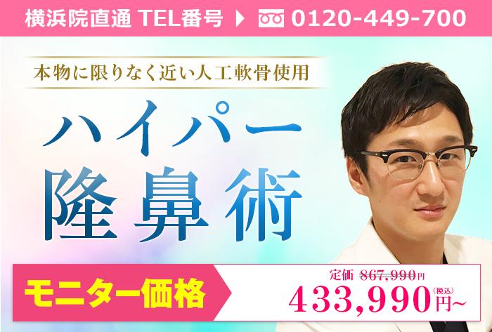 横浜院川井医師によるハイパー隆鼻術 ¥867.990→¥433.990