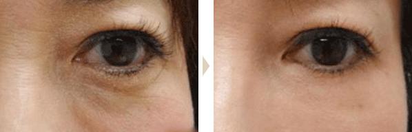 眼睛下方的皱纹,凹凸被改善,变年轻了