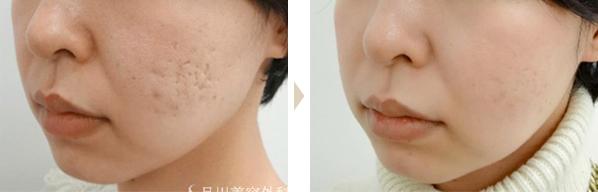 面颊部的凹凸部分消失了。豪华版美肌注射是对于细小部分最适合的治疗。