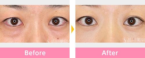 膨らみ 目の下 の 目の下の脂肪の膨らみを取った後、また膨らんでくることはあるのか? :
