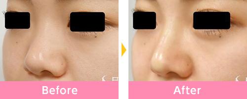 ヒアルロン 酸 鼻